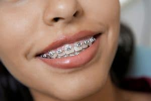 Marketing for Orthodontists